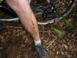 Markotove kolesarske noge.